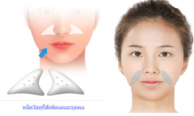 การฉีดฟิลเลอร์ร่องแก้ม เจ็บน้อยกว่าการศัลยกรรมร่องแก้ม